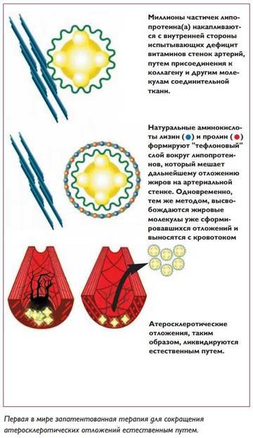 http://s5.uploads.ru/t/BiYNz.jpg