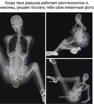 http://s5.uploads.ru/t/pTfrs.jpg